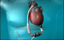 LVAD (mechanical pump surgically connected to the heart to treat heart failure)