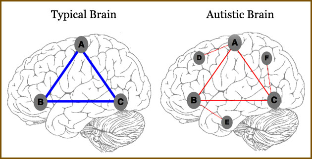 overconnectivity in brain found in autism