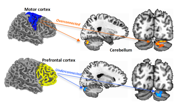 Brains Of People With Autism Spectrum >> Brain Connections In Autism Newscenter Sdsu