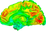 Brain images of typically developing adolescents and adolescents with Autism Spectrum Disorders