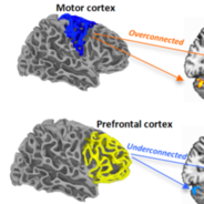 These fMRI scans show regions of over- and underconnectivity between the cerebellum and cerebral cortex in young people with autism spectrum disorder.
