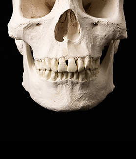A skull with teeth intact.