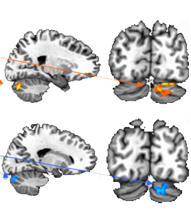 The fMRI scans show regions of over- and underconnectivity between the cerebellum and cerebral cortex in young people with autism spectrum disorder.