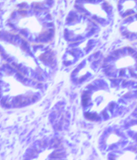 Cancer tumor in a mouse